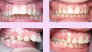 Braces for Cosmetic Correction