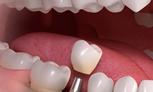 Dental Implant and Restorations