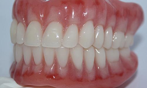 Immediate Dentures | Carrollton Advanced Family Dentistry