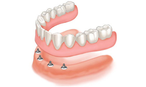 Implant Snap on Dentures