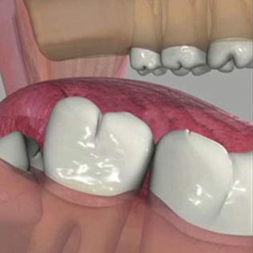 Surgical Extractions & Oral Surgery